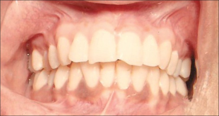 Figure 3 :Postoperative photograph 9 months after gingival depigmentation