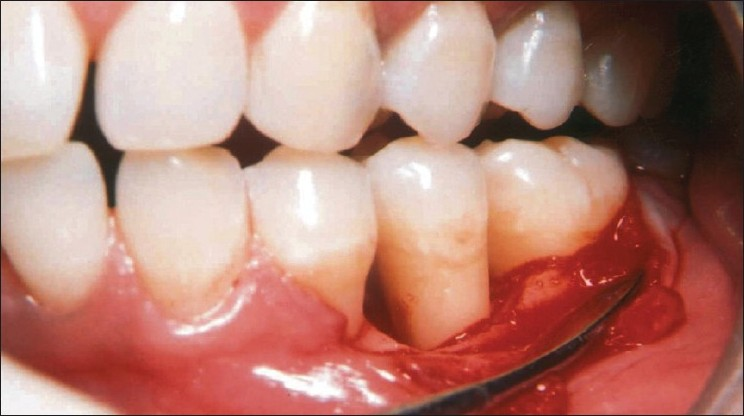 Figure 2 :Reflection and debridement of the area revealed a 3 wall defect on the mesial aspect of tooth #35