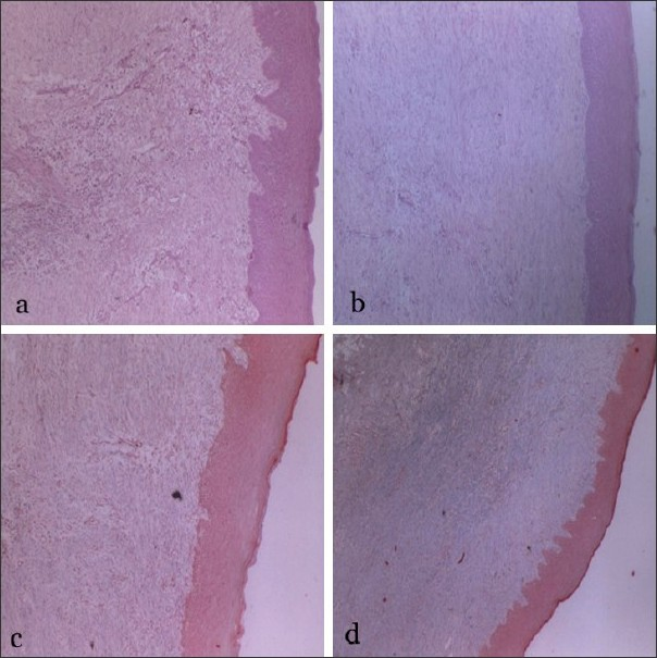 ... (c) Masson's trichrome staining exhibiting mature collagen in control ...