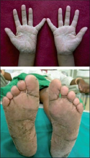 Figure 1: Hyperkeratosis of palms and soles - case 1
