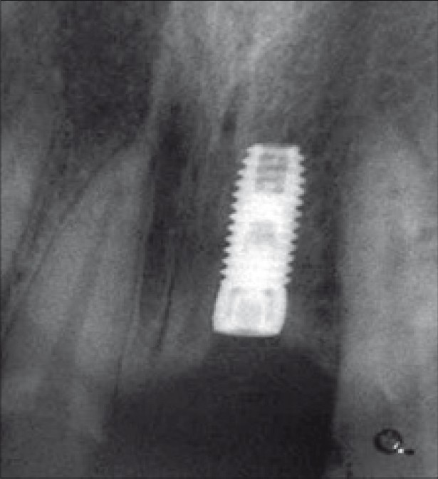 Figure 5: Post-operative radiograph