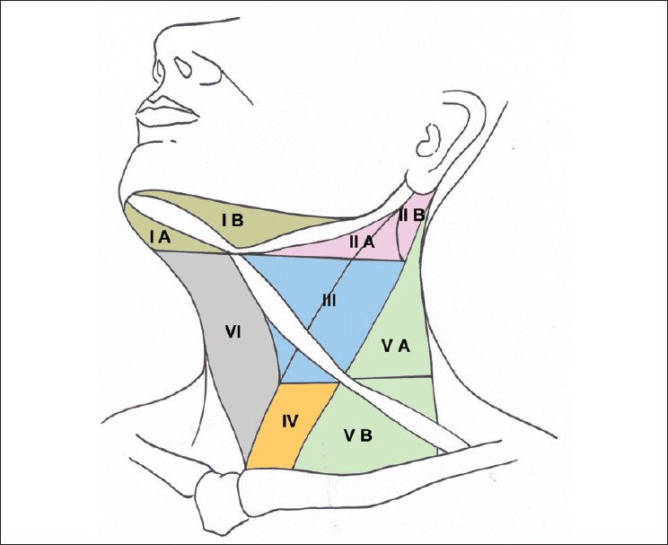 Figure 1: Diagrammatic schema of the neck showing nodal levels and sublevels<sup>[6]</sup>