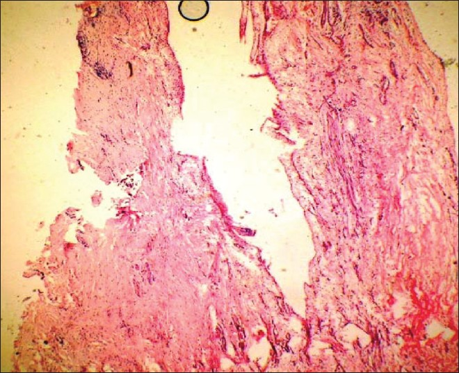 Figure 7: Histopathological slide showing a thin stratified squamous epithelium lining the lumen