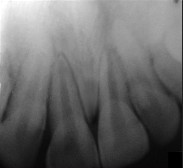 Figure 2: No evidence of crestal bone loss and lamina dura was intact around the roots of both maxillary central and lateral incisors