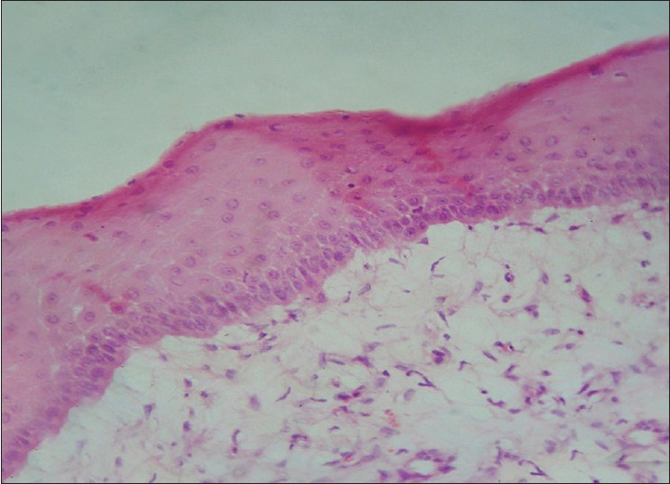 Figure 4: Stratified squamous epithelium with hypertrophy, hyperplasia and keratosis. (H and E, 400×)