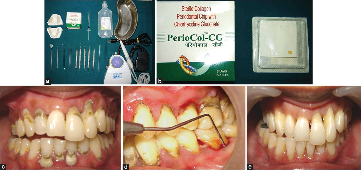 Effectiveness Of A Controlled Release Chlorhexidine Chip Periocoltm