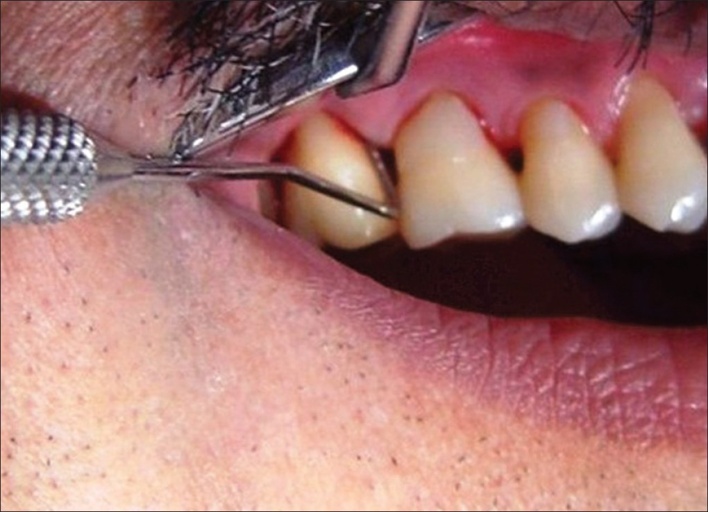 Evaluation of the association between chronic periodontitis