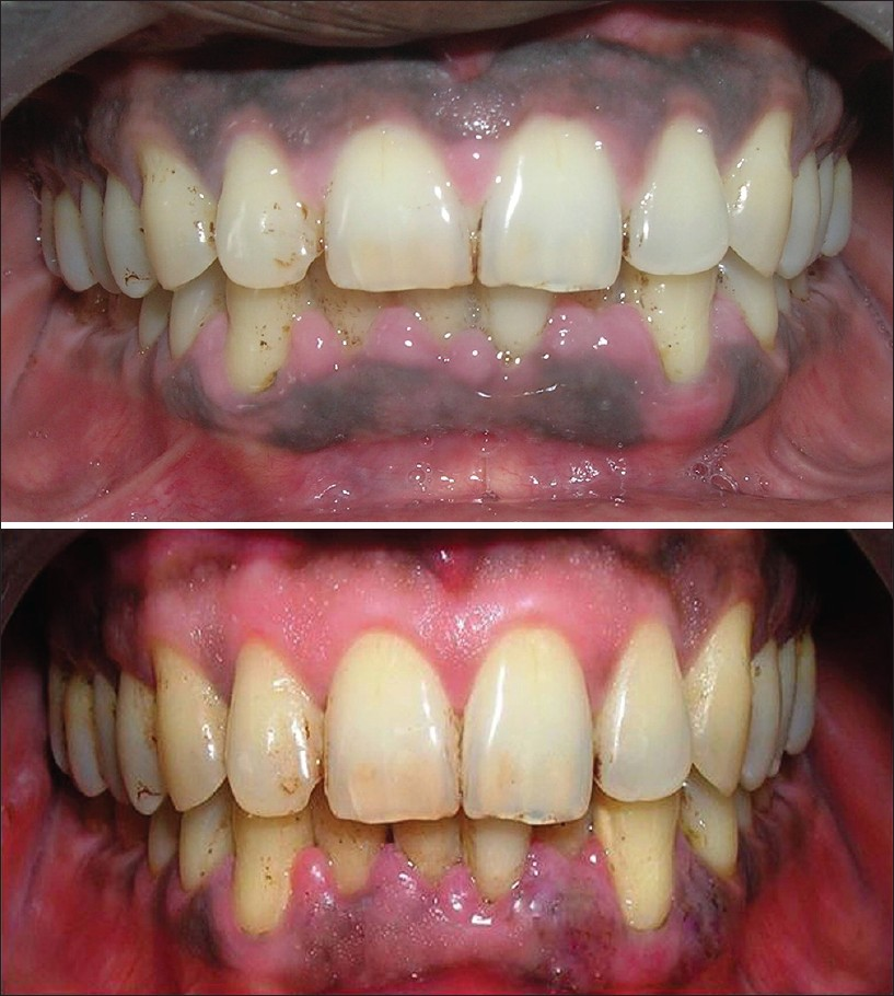 how to turn black gums pink