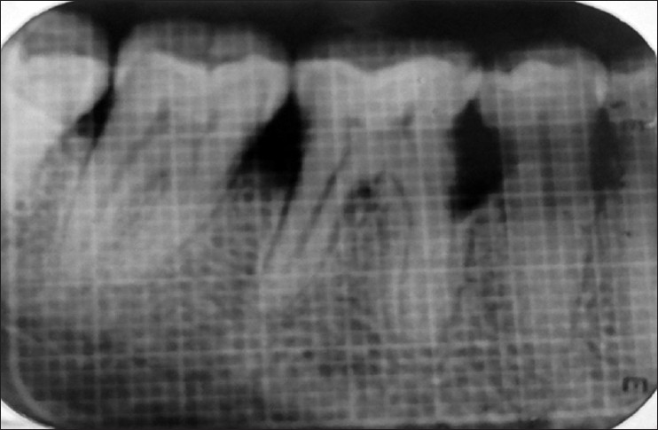 Figure 1: Intraoral peri-apical radiograph at baseline (Group I)
