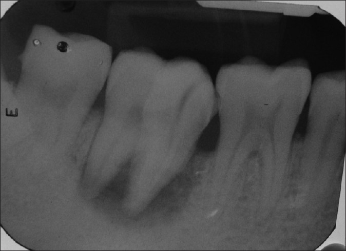 Figure 4: Pre-operative radiograph showing periapical radiolucency in relation to #47
