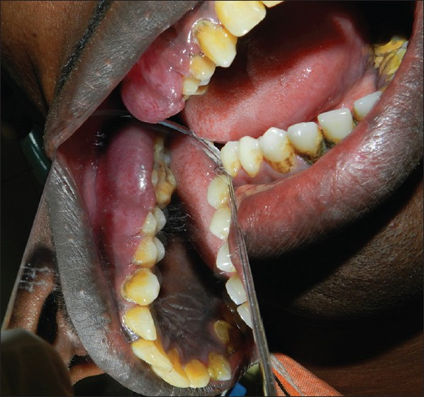 Figure 2: Occlusal view of the gingival growth