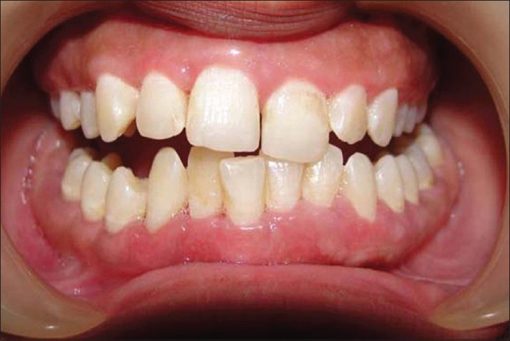 An Unusual Clinical Presentation Of Plasma Cell Gingivitis