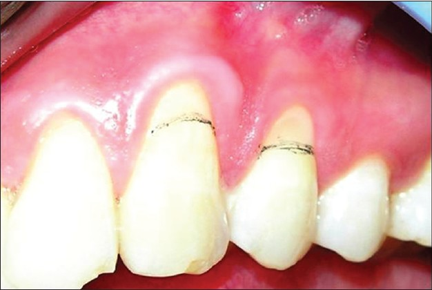 Figure 1: Miller's Class I gingival recession with respect to 23 and 24