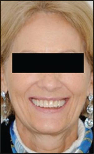 Figure 12: Patient's profile wearing the provisional denture