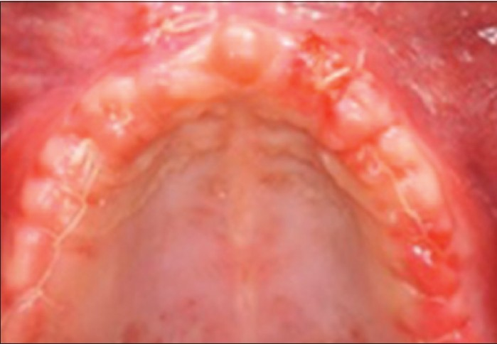 Figure 7: Maxillary alveolar ridge: 15-day post-operative following-up, occlusal view