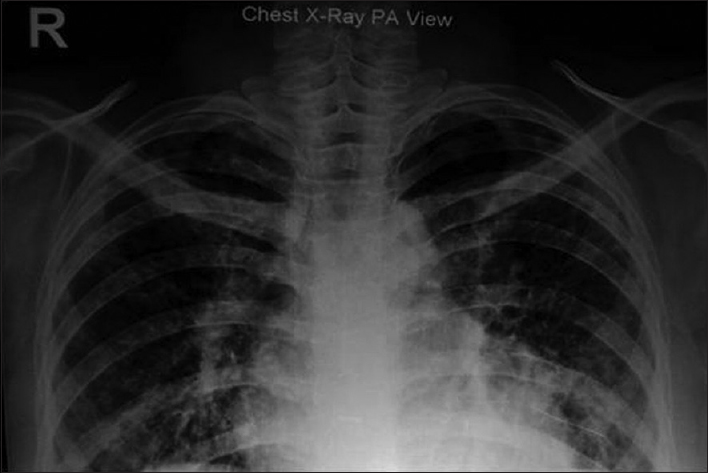 Figure 6:  Posterior-anterior view of the chest X-ray showing bilateral hilar lymphadenopathy with soft parahilar opacities