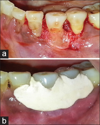 Figure 5: (a) Thorough debridement performed. (b) Periodontal dressing given