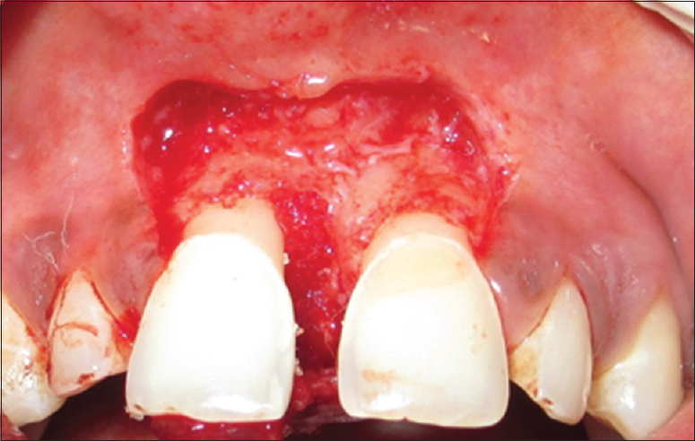 Figure 5: Debridement done and bone graft placed