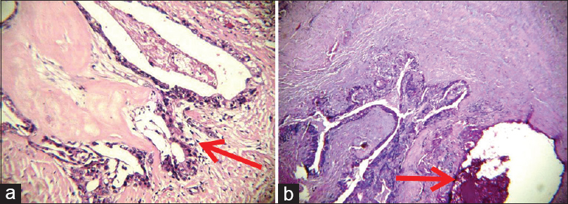 Figure 3: (a) Dense collagen bundles with presence of salivary gland tumor at greater depth (H and E, ×10). (b) Dense collagen bundles with the presence of salivary gland tumor at greater depth (PAS, ×10)