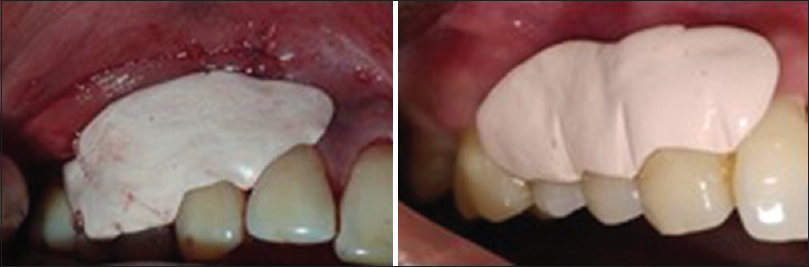 Figure 5: Periodontal pack