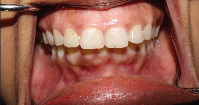 Figure 7: Preoperative intraoral view showing the excessive gingival display
