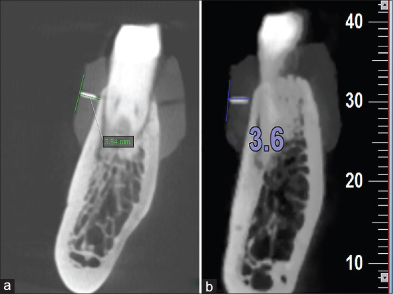 Evaluation of the cone-beam computed tomography accuracy in