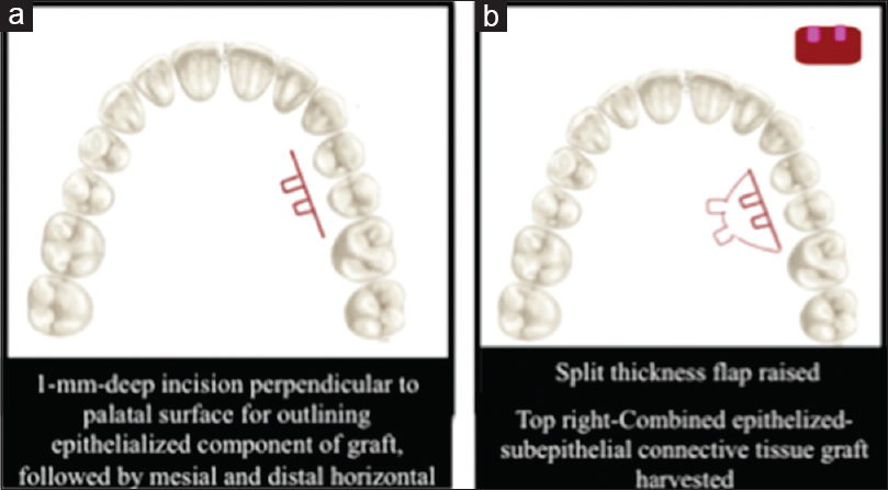 Figure 16: Stimmelmayr <i>et al's</i>. technique. a: 1-mm deep incision perpendicular to palatal surface for outlining epithelialized component of graft, extending it mesially and distally by horizontal releasing incisions; b: Split thickness flap raised and a combined epithelized-subepithelial connective tissue graft harvested