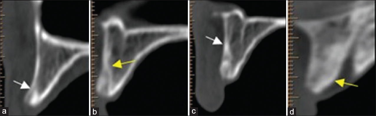 Figure 21: Computed tomography scan image. Formation of bone at control site (a) (white arrow) and test site (b) (yellow arrow), after 6 months; 9 months' evaluation at control site (c) (white arrow) and test site (d) (yellow arrow) - case 1