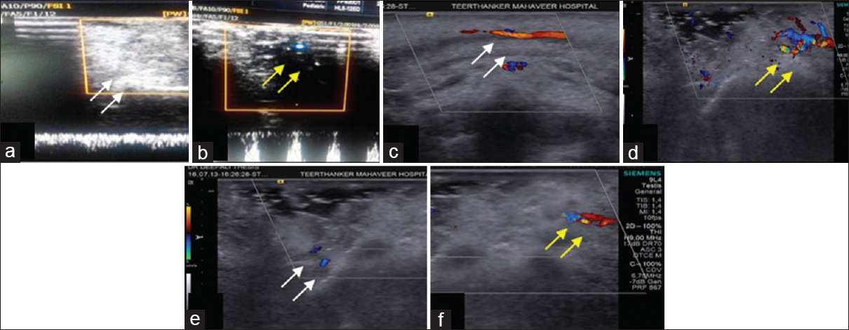 Figure 24: Ultrasound Doppler flowmetry. Baseline evaluation shows no changes at both the sites control site (a) (white arrows) and test site (b) (yellow arrows); Evaluation at 10<sup>th</sup> day and 1 month depicts improved blood flow at test site (d and f) (yellow arrows) than control site (c and e) (white arrows) - case 1
