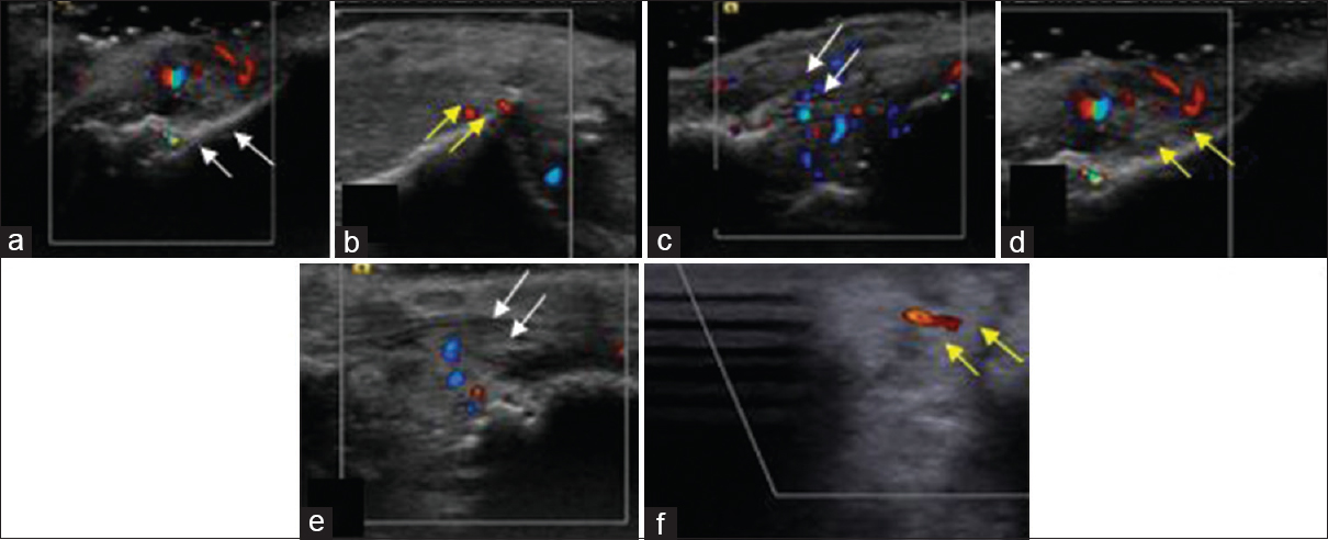 Figure 25: Ultrasound Doppler flowmetry. Baseline evaluation shows no changes at both the sites test site (a) white arrows and control site (b) yellow arrows; Evaluation at 10<sup>th</sup> day and 1 month depicts improved blood flow at test site (c and e) than control site (d and f) - case 2