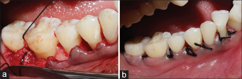 Figure 4: (a) Graft placement into the bone defect; (b) sutures placed