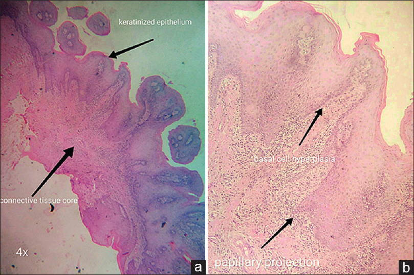 Figure 6: Papillary projection and hyperplasic epithelium (a) showing keratinized epithelium and connective tissue core (×4) and (b) showing basal cell hyperplasia and papillary projection (×20)