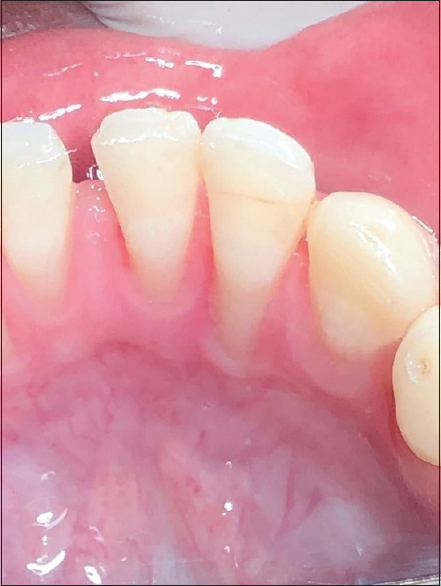 Figure 1: Baseline clinical situation – mandibular right lateral incisor exhibiting 5 mm of lingual gingival recession #42. Midline diastema of 1 mm between the central incisors and mild labial inclination can be seen